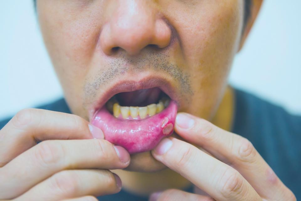 llaga en la boca