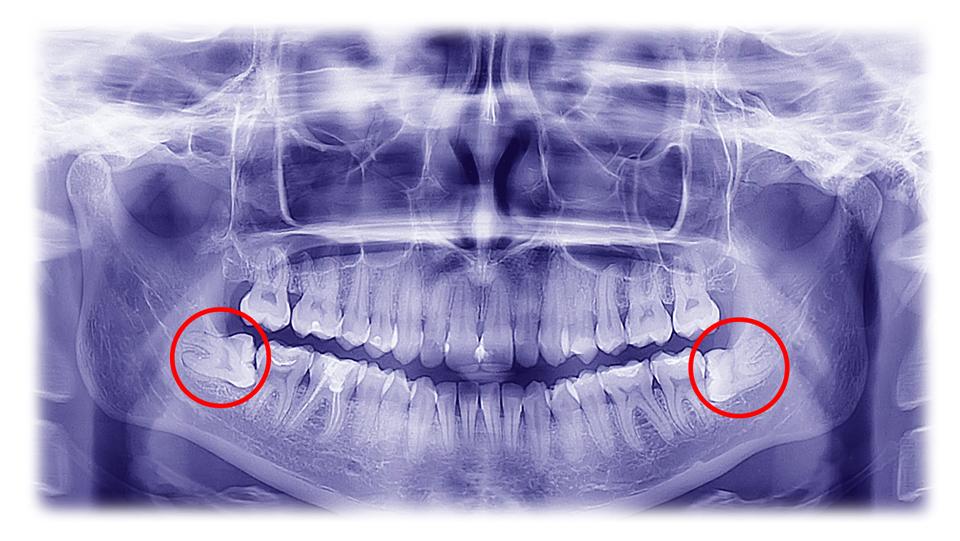 radiografía de las muelas del juicio