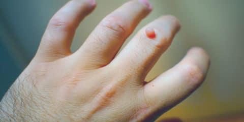 verruga en la mano