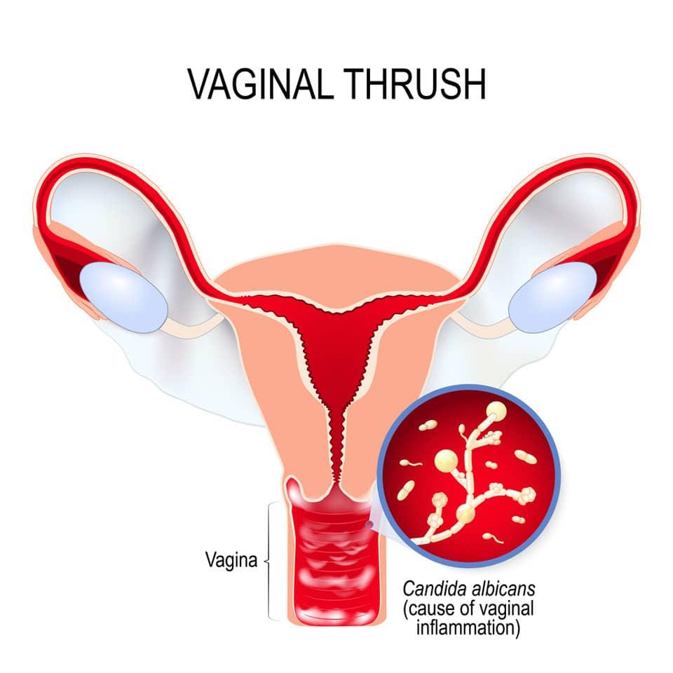dibujo de una vagina con infección por cándida
